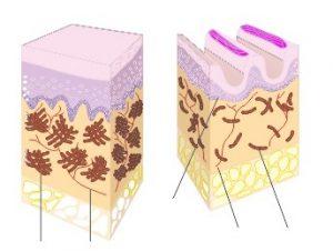 die Haut - schematisch